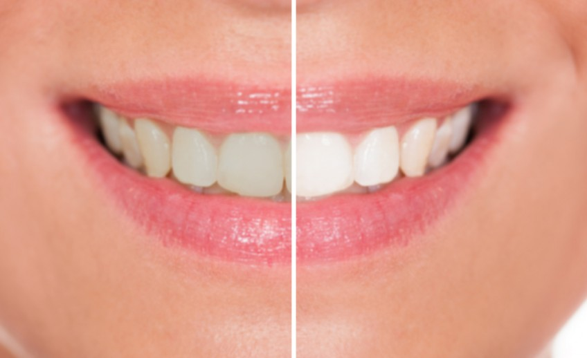 Split screen, left side shows normal teeth, right side shows with teeth whitening teeth