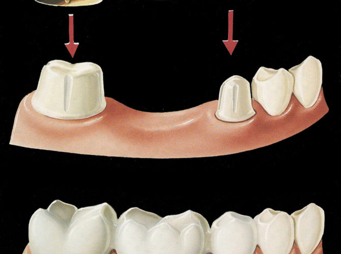 Image showing how bridges can fill gap of missing tooth