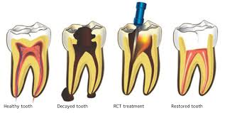 Image of 4 teeth showing how a root canal treatment restores a damaged tooth